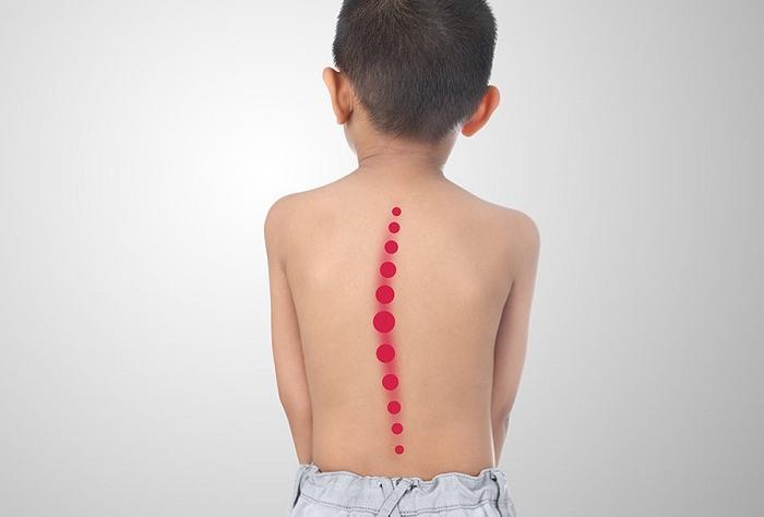 Hậu quả khủng khiếp khi trẻ bị cong vẹo cột sống, khám ngay kẻo muộn